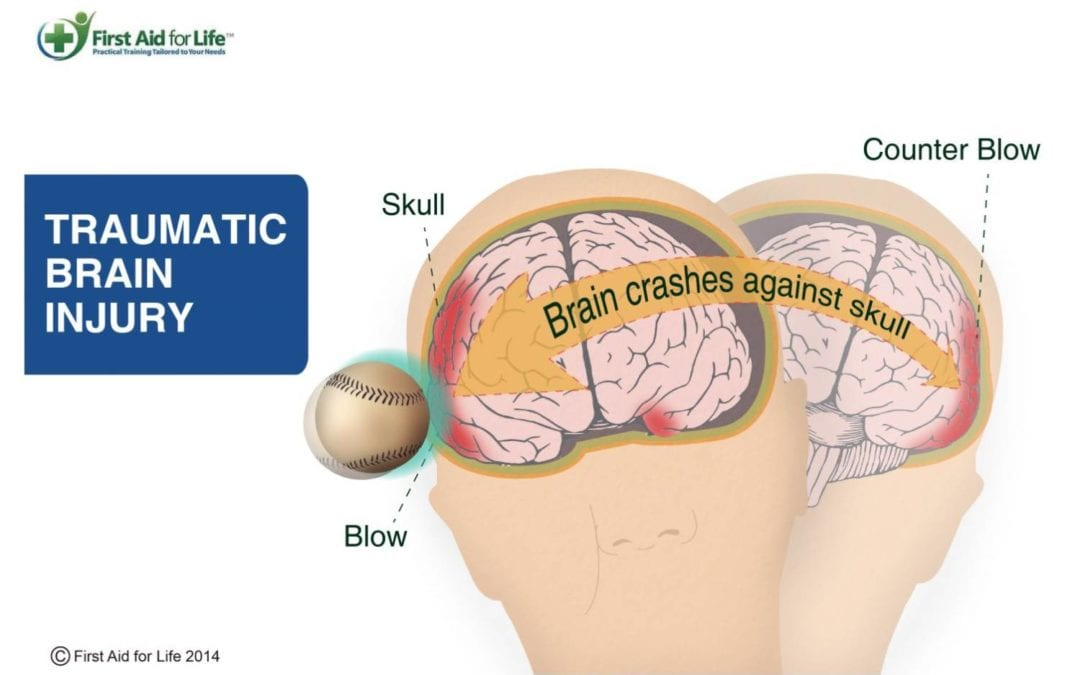 Brain Injury: CTE Found in 87% of Football Players' Brains ...