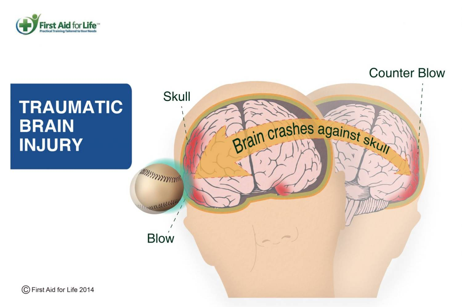 concussions traumatic brain injury and concussion