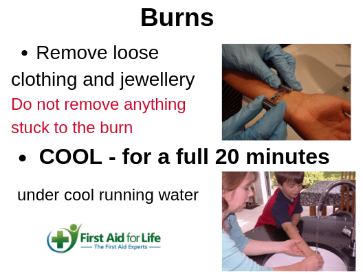 First Aid for Burns - how to reduce pain and scarring