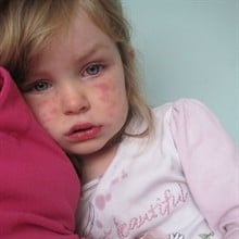 How to recognise and treat mumps, measles, scarlet fever and hand foot and mouth